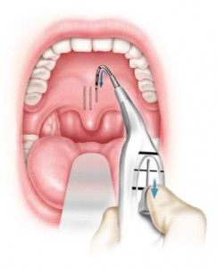 pillar procedure